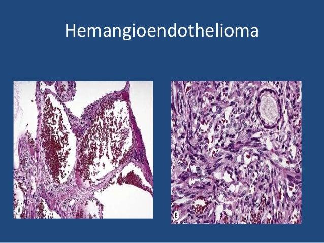 Malignant endovascular papillary angioendothelioma (Dabska tumor; papillary intralymphatic angioendothelioma) • Is an extr...