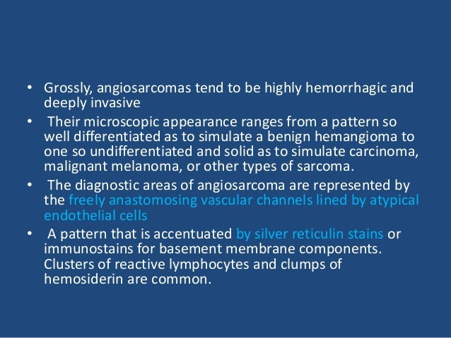 Angiosarcoma Anastomosing vascular channels. On high power, the channels are seen to be lined by highly atypical endotheli...