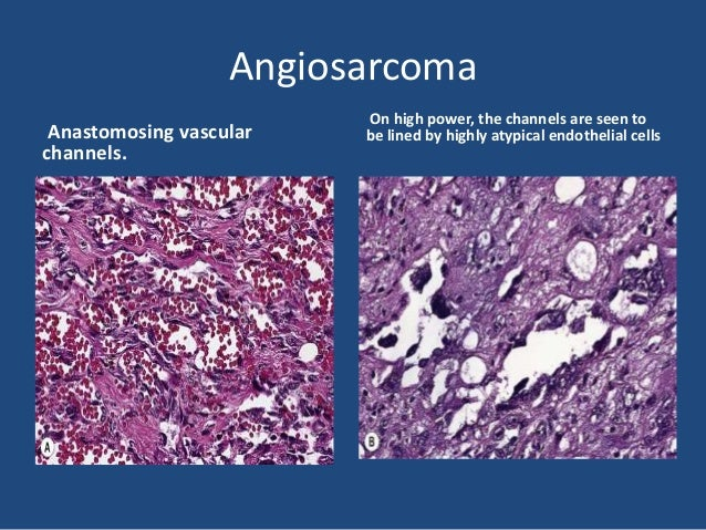 Lymphangioma • Most lymphangiomas represent malformations rather than true neoplasms and are thought to result from failur...
