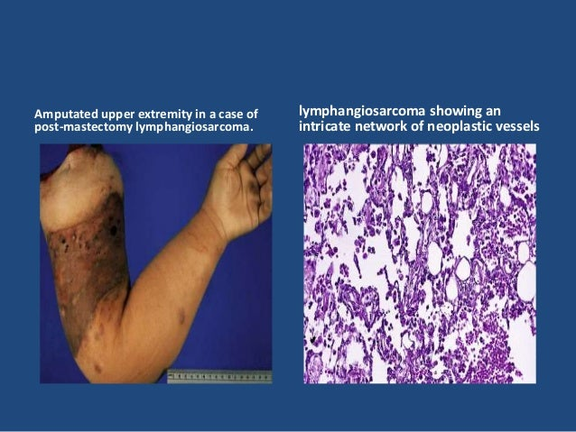 • Grossly, vascular leiomyomas are yellow or yellowish pink, sharply circumscribed, and fairly firm . • Microscopically, t...