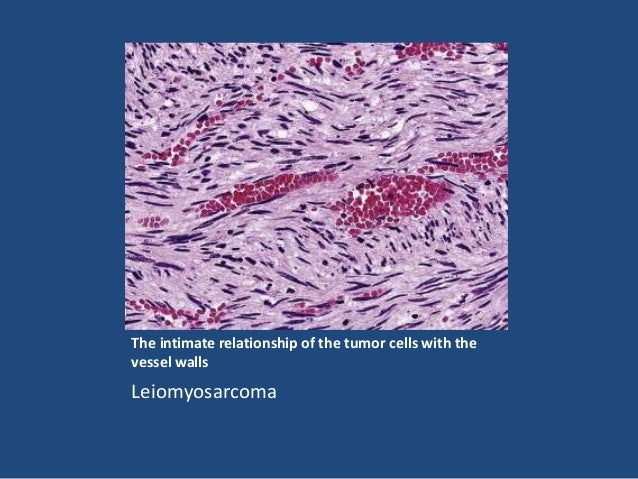 Rhabdomyoma • Bona fide soft tissue benign tumors of skeletal muscle origin are exceedingly rare. • They can be divided in...