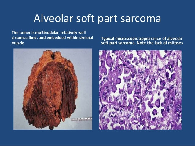 Pleomorphic hyalinizing angiectatic tumor of soft parts. The pleomorphic tumor cells surround dilated vessels.