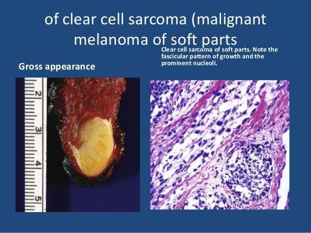 Soft tissue Osteosarcoma