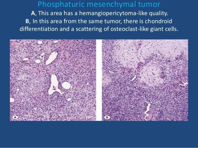 Soft tissue tumor