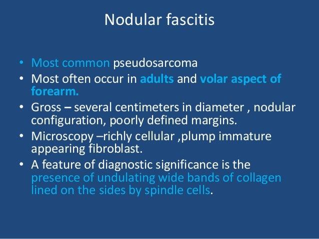 Nodular fascitis