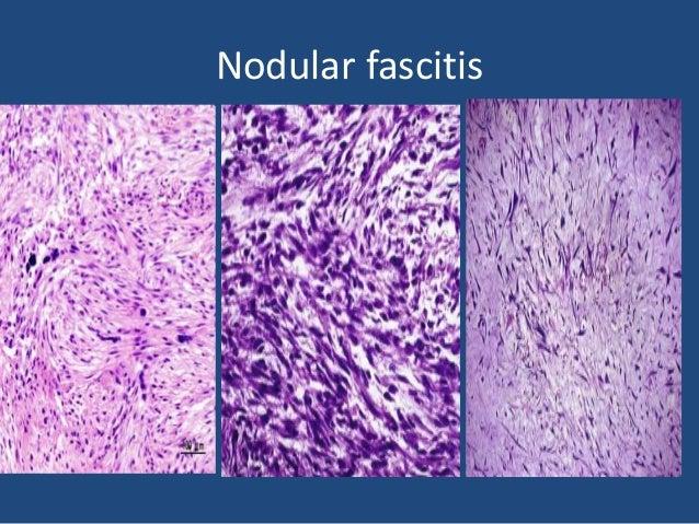 Collagen deposition in nodular fasciitis