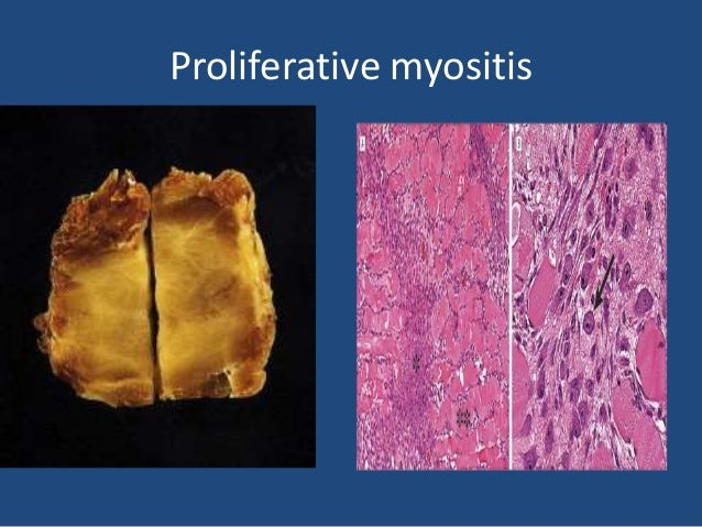 Myositis ossificans • It is a reactive condition that is sometimes mistaken microscopically for osteosarcoma. • The term i...