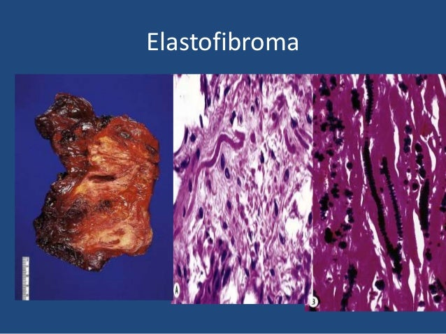 Fibromatosis 1 Proliferation of well-differentiated fibroblasts 2 Infiltrative pattern of growth 3 Presence of a variable ...