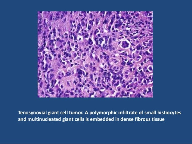 Intermediate (borderline) fibrous histiocytoma • This vaguely defined group of tumors is characterized by local aggressive...