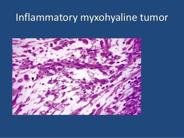 Inflammatory MFH