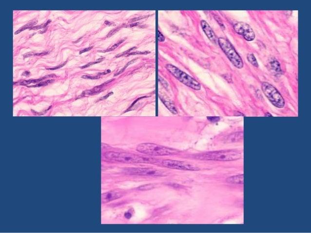 Fascicular Growth • Leiomyosarcoma • Nodular Fasciitis • Fibromatosis • Solitary Fibrous Tumor • Peripheral nerve sheath t...