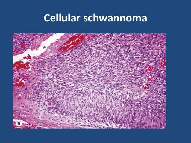 Psammomatous melanotic schwannoma