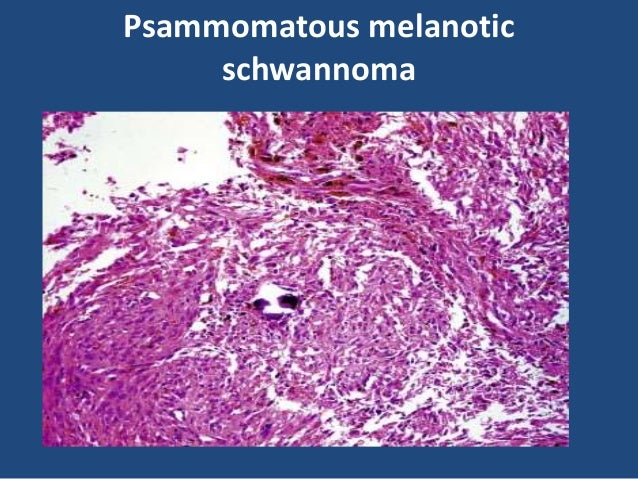 Neurofibroma Well-circumscribed neurofibroma of soft tissue. The tumor has a gelatinous appearance Typical gross appearanc...