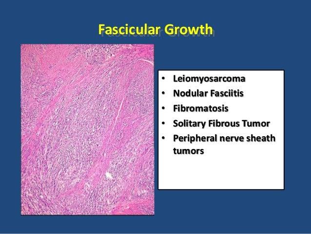 """Herringbone"" Tumors • Synovial sarcoma • Neurofibrosarcoma • Solitary Fibrous Tumor"