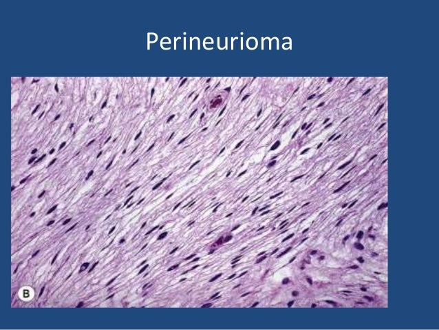 Malignant peripheral nerve sheath tumor • Because of its difficult microscopic recognition, errors are often made. • There...
