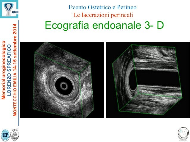 Ecografia endoanale 3- D Memorialuroginecologico LORENZOSPREAFICO MONTECCHIOEMILIA14-15settembre2014 Evento Ostetrico e Pe...