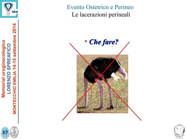 Evento Ostetrico e Perineo Le lacerazioni perineali • Che fare?Che fare? Memorialuroginecologico LORENZOSPREAFICO MONTECCH...