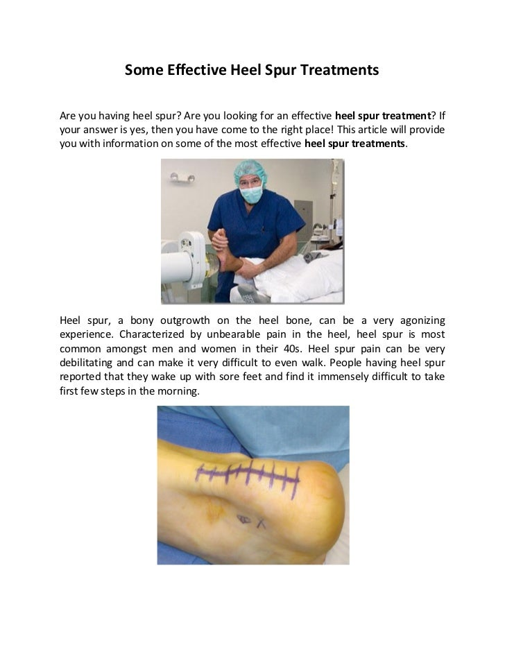 Some Effective Heel Spur TreatmentsAre you having heel spur? Are you looking for an effective heel spur treatment? Ifyour ...