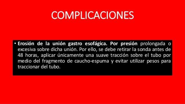 COLOCACION DE SONDA DE SENGSTAKEN-BLAKEMORE PDF