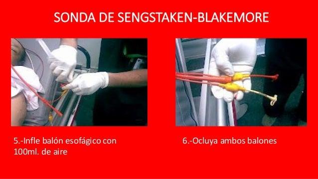 Actualidad Intravenosa Bal n de Sengstaken-Blakemore