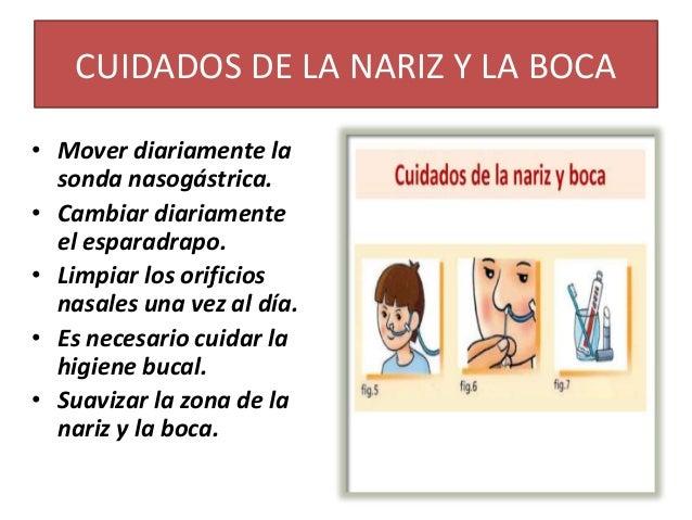sonda nasogastrica cuidados de enfermeria pdf