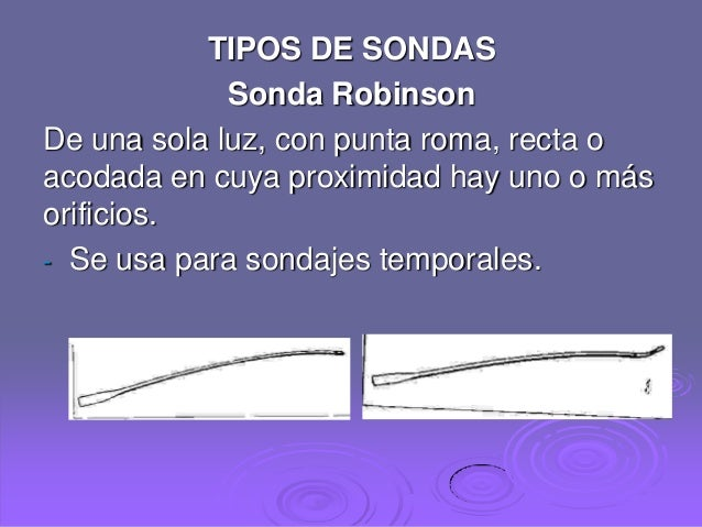 TIPOS DE SONDAS VESICLES DOWNLOAD