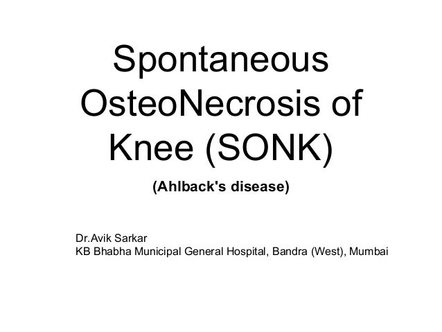Spontaneous OsteoNecrosis Of Knee SONK