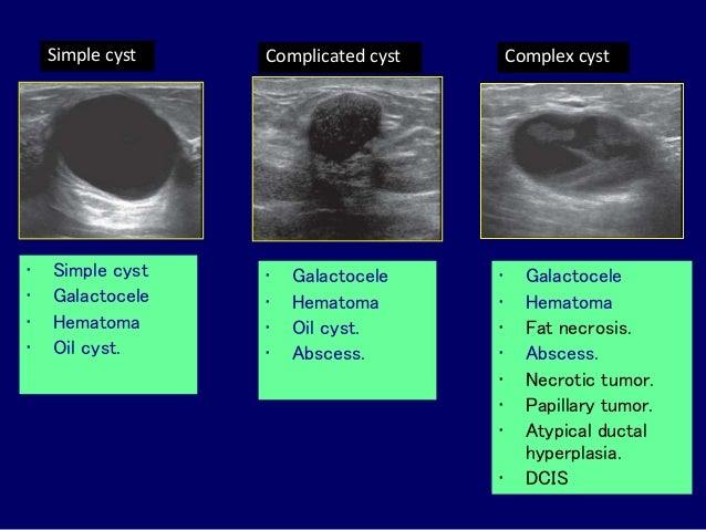 Sonographic Evaluation Of Breast Dr Muhammad Bin Zulfiqar