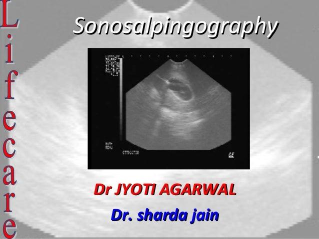 SonosalpingographySonosalpingography Dr JYOTI AGARWALDr JYOTI AGARWAL Dr. sharda jainDr. sharda jain