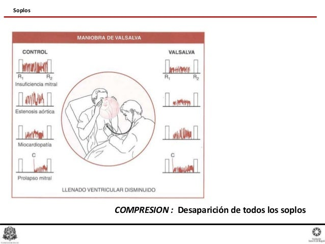 Pathophysiology Of Heart Disease Leonard Lilly Pdf To Excel