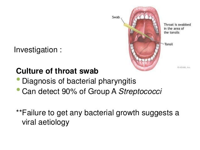 throat culture culture of a microbe Laboratory diagnosis of bordetella pertussis   culture culture for  throat and anterior nasal swabs have unacceptably low rates.