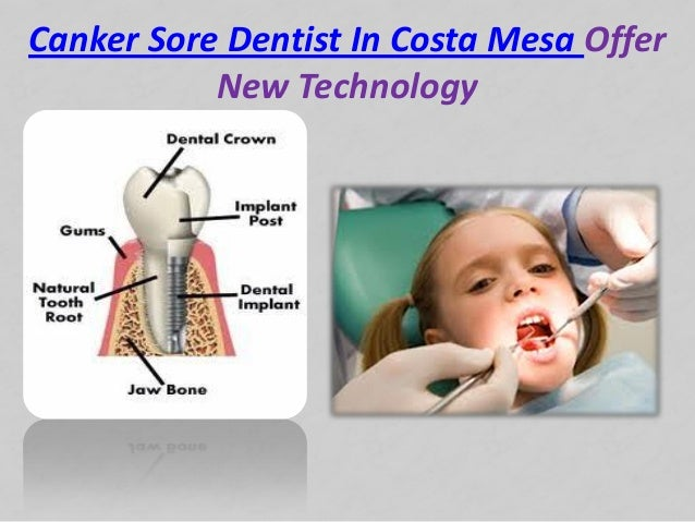 Canker Sore Dentist In Costa Mesa OfferNew Technology