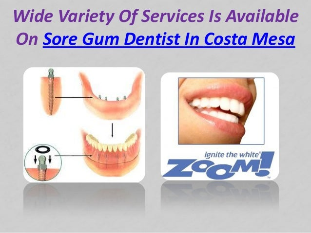 Wide Variety Of Services Is AvailableOn Sore Gum Dentist In Costa Mesa