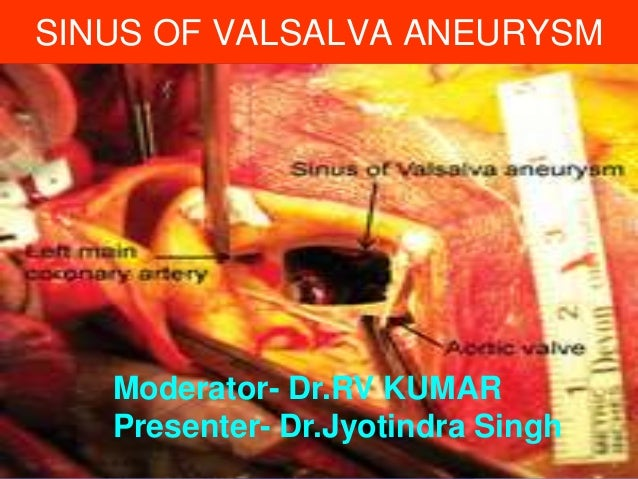 SINUS OF VALSALVA ANEURYSM  Moderator- Dr.RV KUMAR Presenter- Dr.Jyotindra Singh
