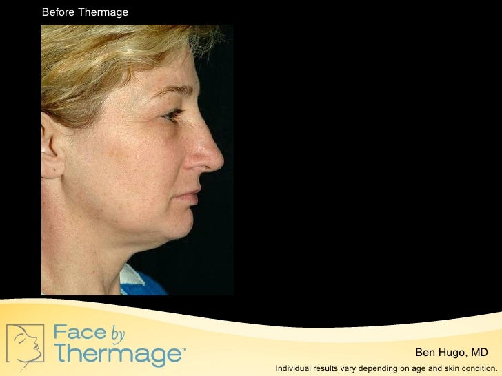 Spa thermage presentation
