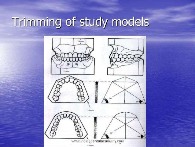 Study models 101 trimming - SlideShare