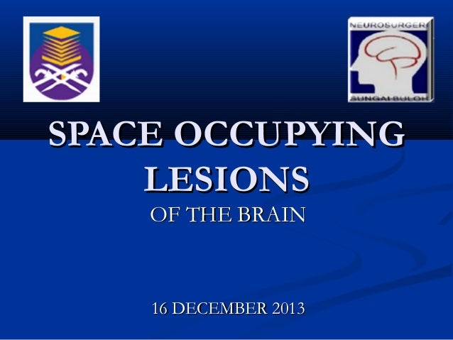 SPACE OCCUPYING LESIONS OF THE BRAIN  16 DECEMBER 2013