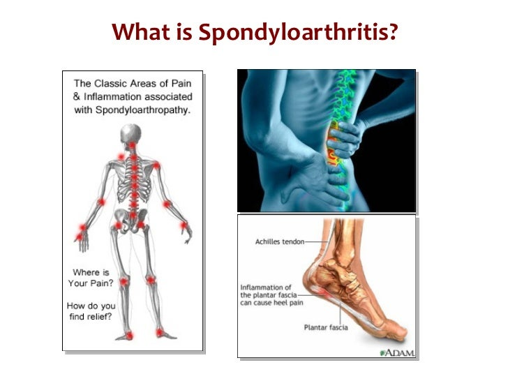 What is Spondyloarthritis? What is Psoriatic Arthritis?