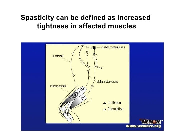 spasticity after stroke, Skeleton