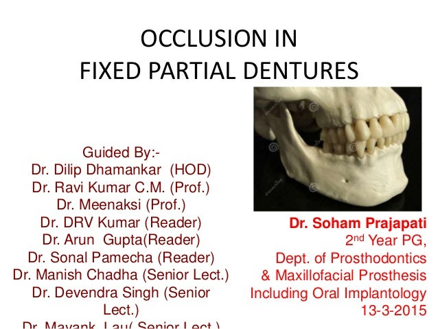 OCCLUSION IN FIXED PARTIAL DENTURES Guided By:- Dr. Dilip Dhamankar (HOD) Dr. Ravi Kumar C.M. (Prof.) Dr. Meenaksi (Prof.)...