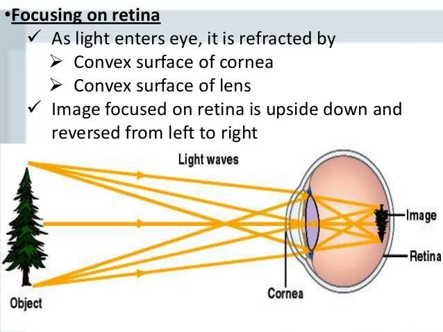 Visual Pathway and Visual field cuts Lesions: a.Blindness in one eye b.Bitemporal Hemianopia c.Homonymous Hemianopia d.Qua...