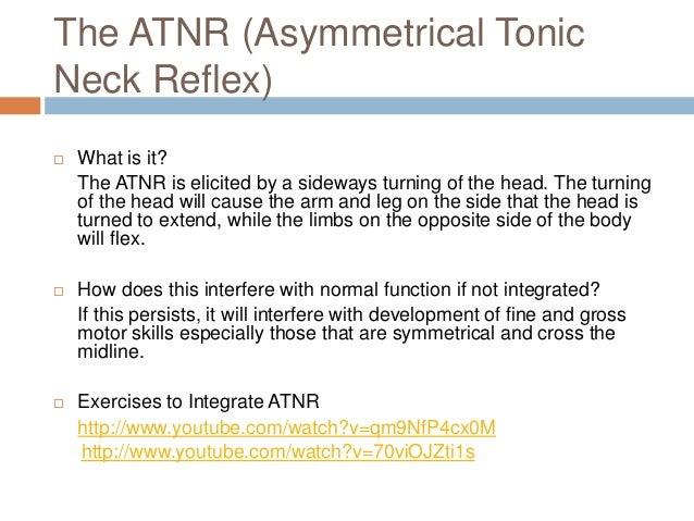 Symmetrical Tonic Neck Reflex (stnr)