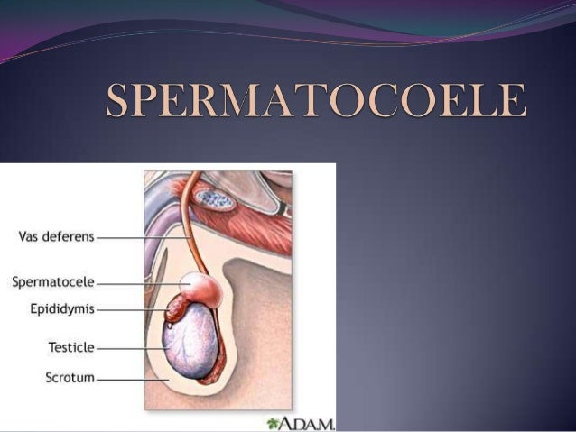 Spermatocoele