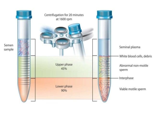 Image result for sperm preparation