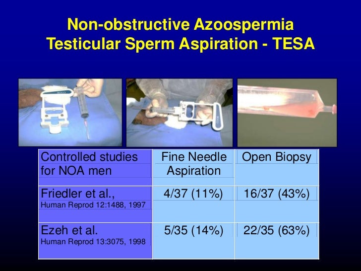 Milked male sperm extraction