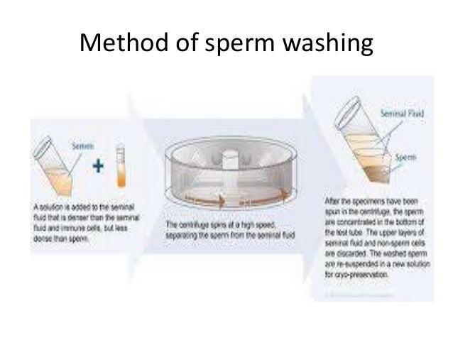 Sperm hiv wash