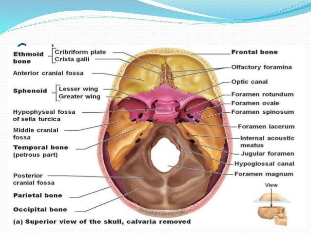 sphenoid wing meningioma, Human Body
