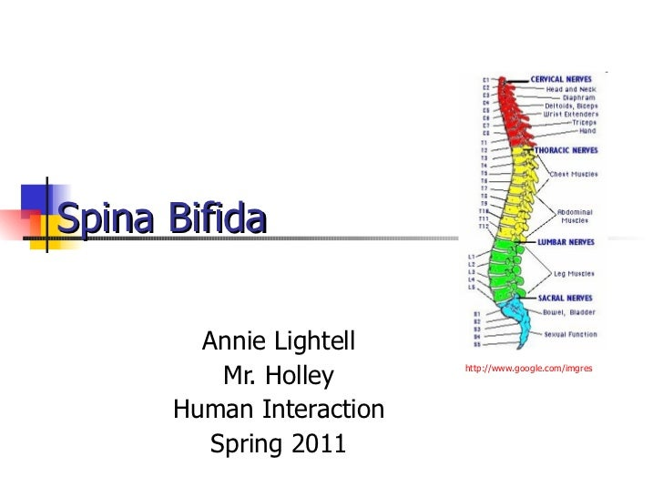 Spina Bifida   Annie Lightell Mr. Holley Human Interaction Spring 2011 http:// www.google.com/imgres