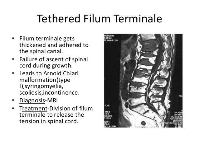 Spina Bifida Other articles where filum terminale is discussed: spina bifida