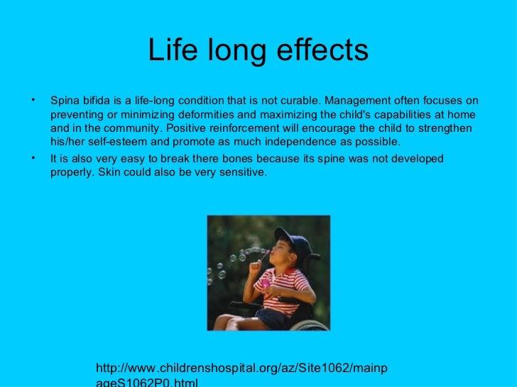 Spina bifida syndrome p3